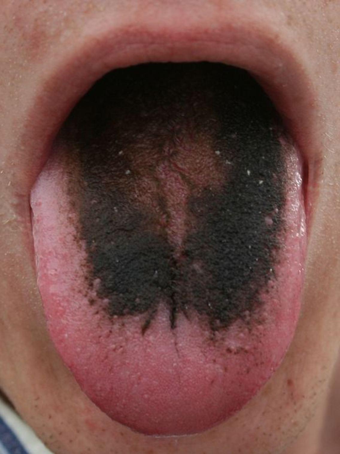 Haarige Zunge