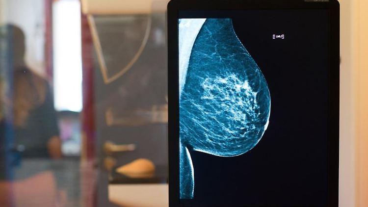 Die Brust einer Frau ist auf einer Röntgenaufnahme zu sehen. Foto: Klaus-Dietmar Gabbert/Archivbild