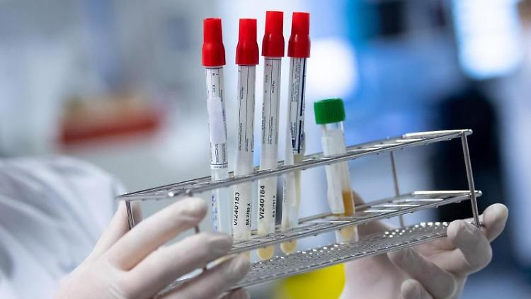 Eine Laborantin führt Tests auf das Coronavirus durch. Foto: Sven Hoppe/dpa/Symbolbild