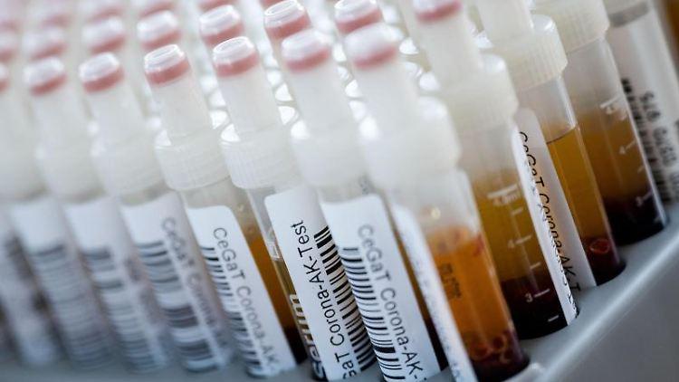 Blutentnahmeröhrchen mit Blutproben für einen Corona-Antikörper-Test. Foto: Marijan Murat/dpa
