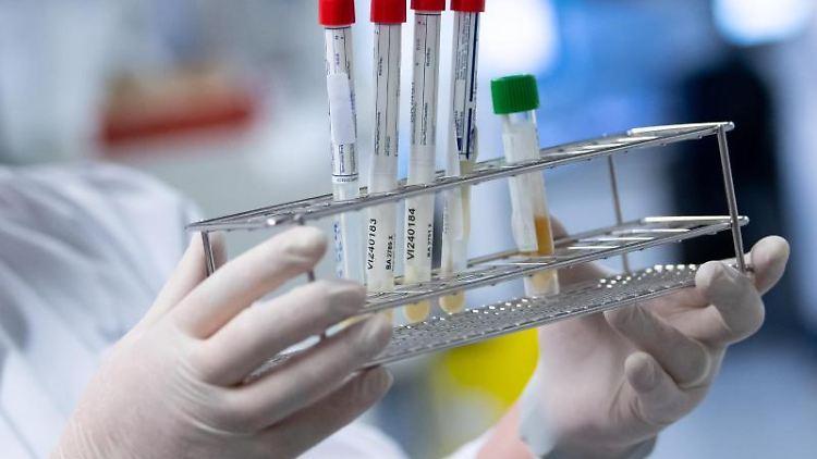 Eine Laborantin bereitet Corona-Proben für die weitere Analyse vor. Foto: Sven Hoppe/dpa/Archiv/Symbolbild