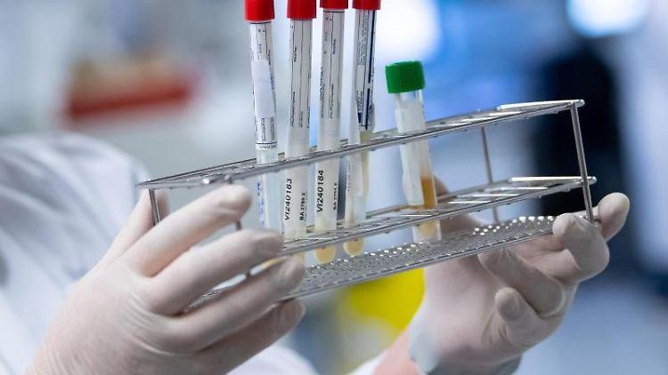 Eine Laborantin bereitet Corona-Proben für die weitere Analyse vor. Foto: Sven Hoppe/dpa/Symbolbild