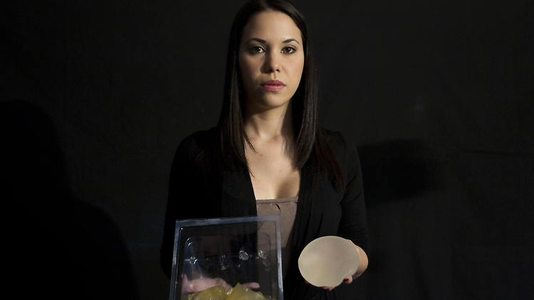 2011-12-30T201906Z_01_VEN03_RTRMDNP_3_BREAST-IMPLANTS-LATINAMERICA.JPG6344863385472273449.jpg