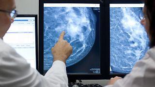 Den Forschern zufolge lassen sich mittels Kernspintomografie deutlich mehr Tumoren erkennen als etwa durch Mammografie. (Bild: dpa)