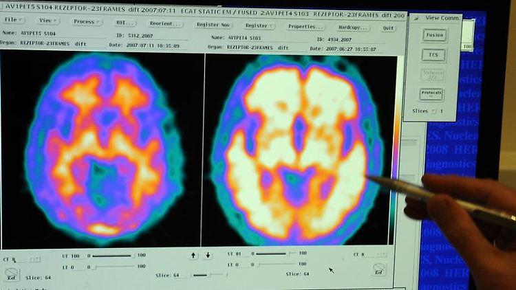 Vergleich zweier Hirnaufnahmen - links von einem gesunden Probanden, rechts von einem Alzheimerpatienten (Archivfoto).