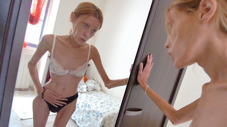 Das verstorbene französische Model Isabelle Caro ist wohl die bekannteste Magersüchtige.